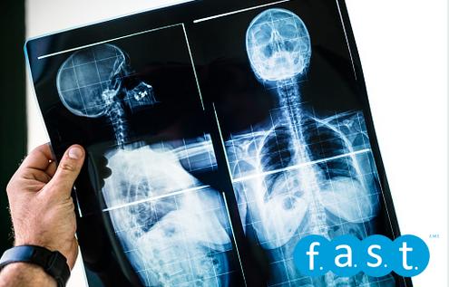 radiografía escoliosis Fast Fitness